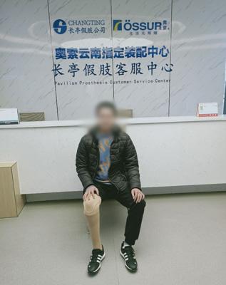 小腿短残肢假肢