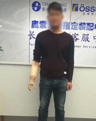 上肢前臂肌电假肢