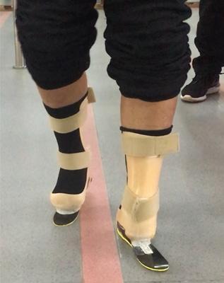 双半足碳纤板假肢