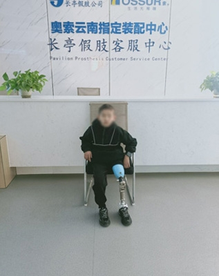 小孩大腿假肢